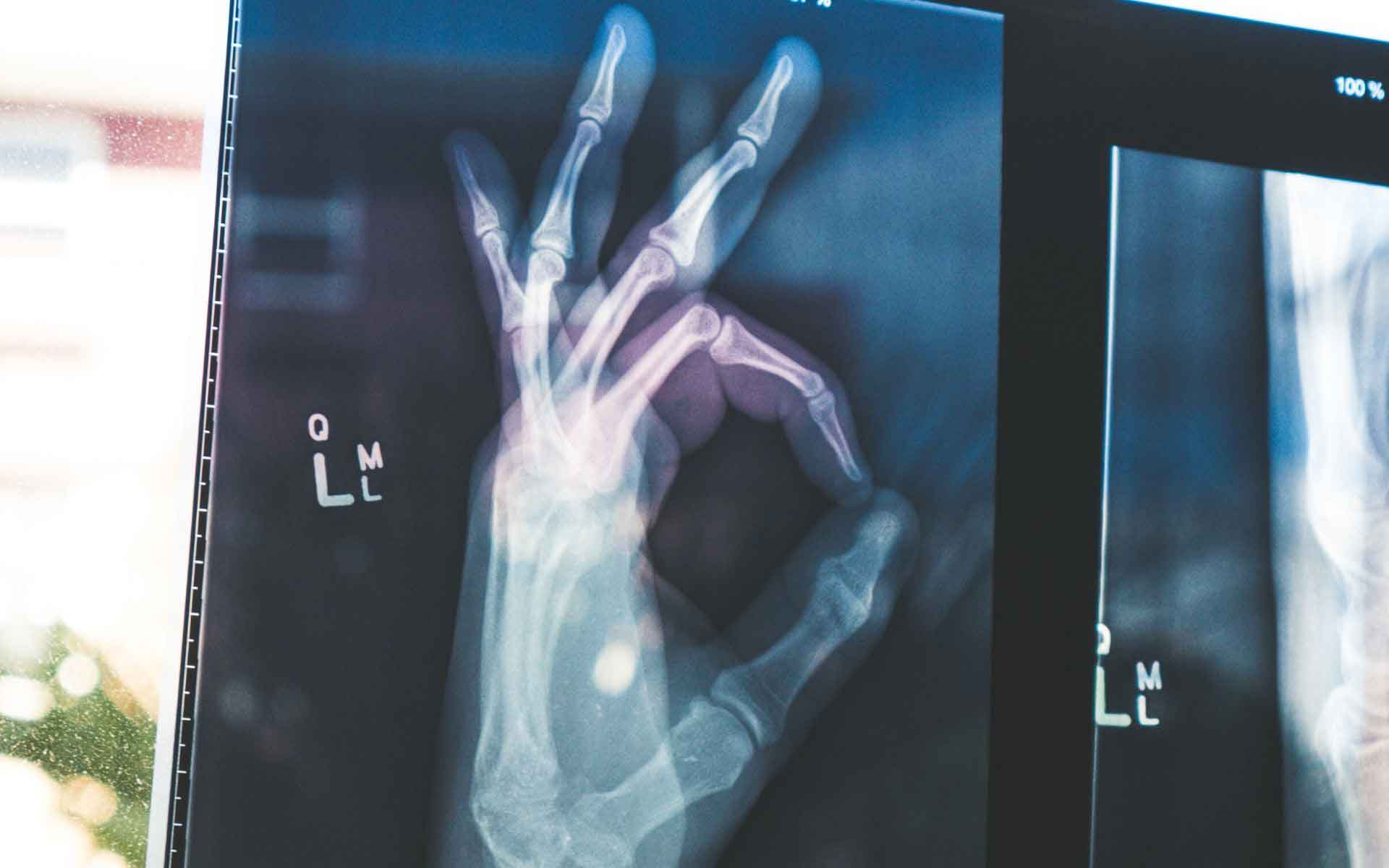 xray of a hand making the OK sign